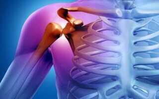 Коксартроз плечевого сустава симптомы и лечение