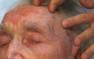 Височный артериит симптомы лечение