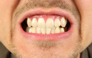 Болячки во рту причины и лечение у взрослых