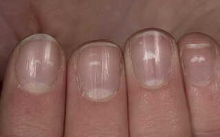 Почему белеют ногти на руках причины и лечение?