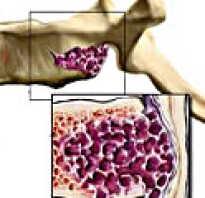 Гемангиома позвонка лечение