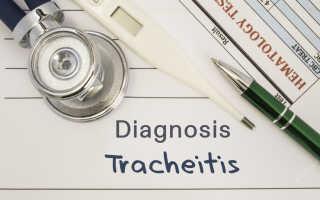 Сухой кашель при трахеите у ребенка чем лечить