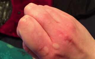 Лечение аллергии на руках народными средствами