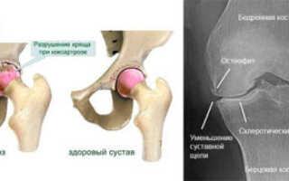 Коксартроз тазобедренного сустава симптомы и лечение питание