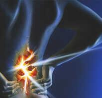Болезнь люмбаго симптомы и лечение