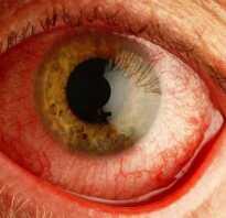 Боль и покраснение глаза чем лечить
