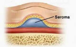 Лечение серомы после операции