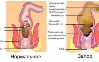 Как лечить ленивый кишечник у взрослых?