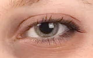 Синяки и отеки под глазами причины и лечение у женщин