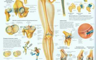 Скрипит и болит колено при сгибании лечение