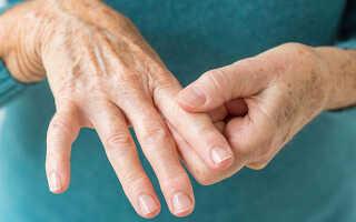 Что за болезнь артрит и чем ее лечить?
