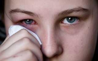 Гнойный конъюнктивит у детей лечение капли