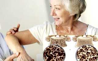 Остеопороз локтевого сустава симптомы и лечение