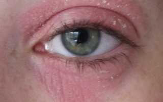 Сухая кожа вокруг глаз причины и лечение