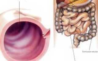 Острый энтероколит симптомы и лечение