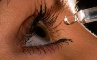 Синдром шегрена симптомы и лечение