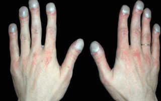 Чем лечить больные ногти
