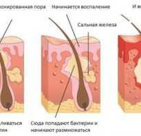 Лечение прыщей лечение угрей
