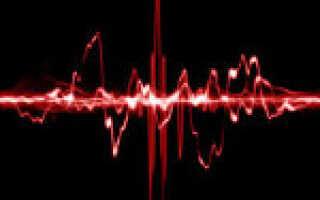 Экстрасистолия сердца причины лечение