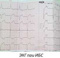 Ишемия сердца что это симптомы и лечение
