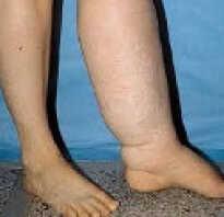 Лечение лимфедемы ног