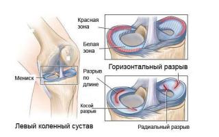 Повреждение мениска коленного сустава и связок симптомы и лечение