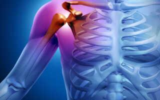 Шейно плечевой периартрит симптомы и лечение