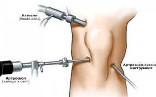 Лечение коленного сустава после артроскопии
