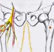 Невропатия бедренного нерва симптомы лечение