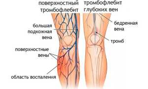 Чем лечить тромбоз на ногах