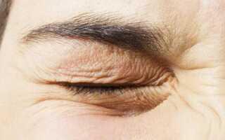 Подергивание века глаза причины и лечение у взрослых
