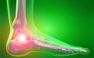 Болит голеностопный сустав лечение народными средствами