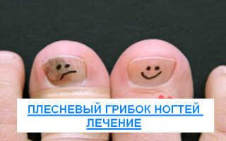 Как лечить плесневый грибок на ногтях?
