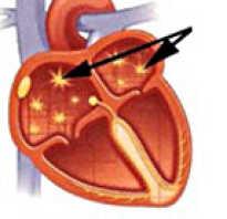 Мерцающая аритмия сердца симптомы лечение