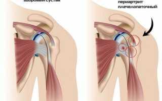 Плечелопаточный периартроз симптомы и лечение народными средствами