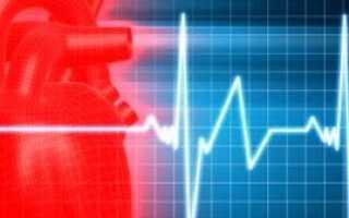Болезнь стенокардия симптомы и лечение