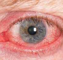 Покраснение белков глаз причины лечение