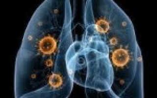 Вирусная пневмония лечение симптомы