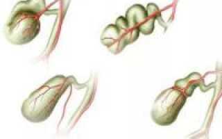 Как лечить деформация желчного пузыря?