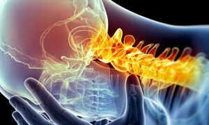 Симптомы шейной мигрени и ее лечение