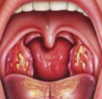 Лакунарная ангина симптомы лечение