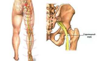 Как лечить ишиас правой ноги?