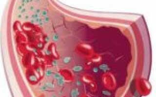 Как лечить тромбофилию до беременности?