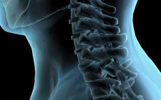 Как лечить спину хреном?