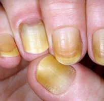 Ноготь отходит от кожи лечение