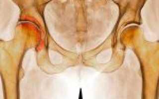 Деформирующий артроз лечение тазобедренного сустава