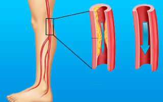 Атеросклероз нижних конечностей лечение симптомы
