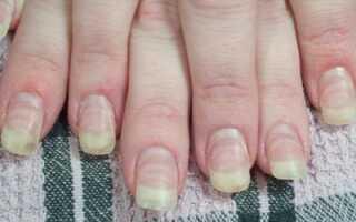 Плесень на ногтях после наращивания как лечить