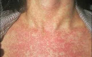 Заболевание краснуха симптомы и лечение