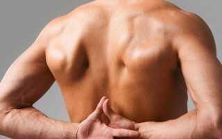 Блуждающий остеохондроз симптомы и лечение